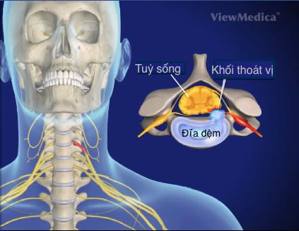 thoat-vi-dia-dem-dot-song-co