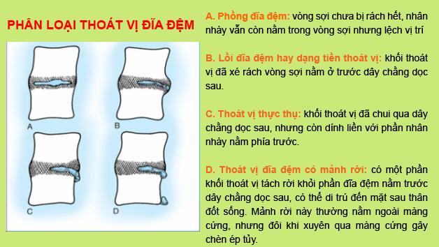 phan-loai-thoat-vi-dia-dem
